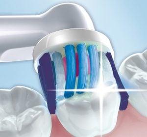 почистване отлични зъби